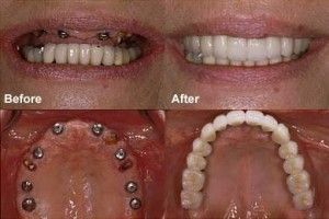 image showing before and after photos of dental implant procedure