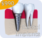 $990 Dental Implant Special